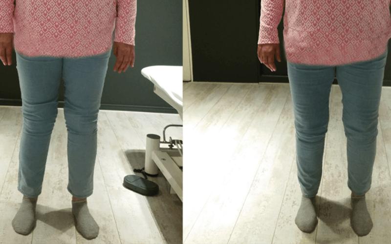 Heupartrose, wel of geen operatie? foto 1 x benen 1024x494